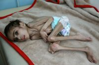 FILE PHOTO: Faid Samim, 7, a malnourished boy who also has cerebral palsy, lies on a bed at the malnutrition treatment ward of al-Sabeen hospital in Sanaa, Yemen December 28, 2020. REUTERS/Khaled Abdullah